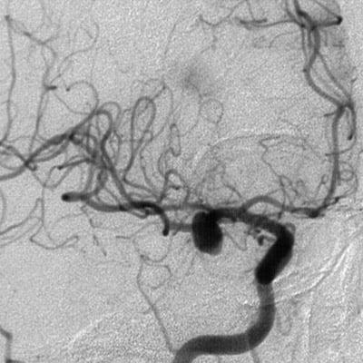 Аневризма сосудов головного мозга, последствия после операции