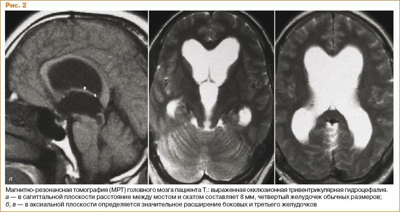 Гидроцефалия головного мозга симптомы