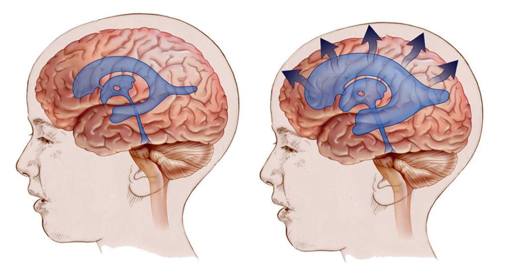 Гидроцефалия головного мозга: симптомы, лечение, виды операций и цены