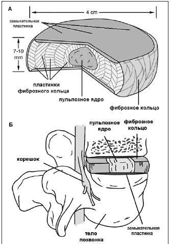 Протрузия дисков позвоночника поясничного отдела как лечить