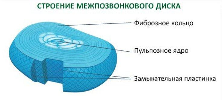 Лечение протрузии дисков позвоночника поясничного отдела видео