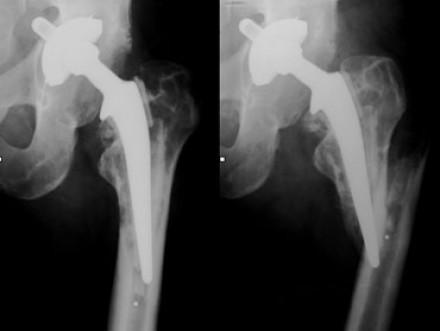 Эндопротезирование суставов при остеопорозе костей: риски отказа в операции