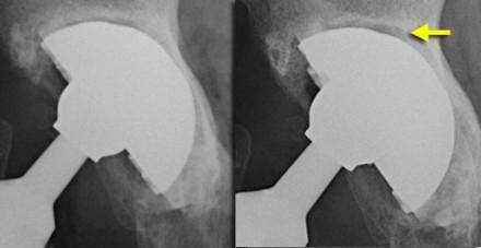 Сроки восстановления после операции по замене тазобедренного сустава