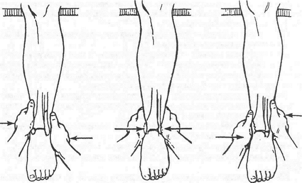 Операция по замене голеностопного сустава