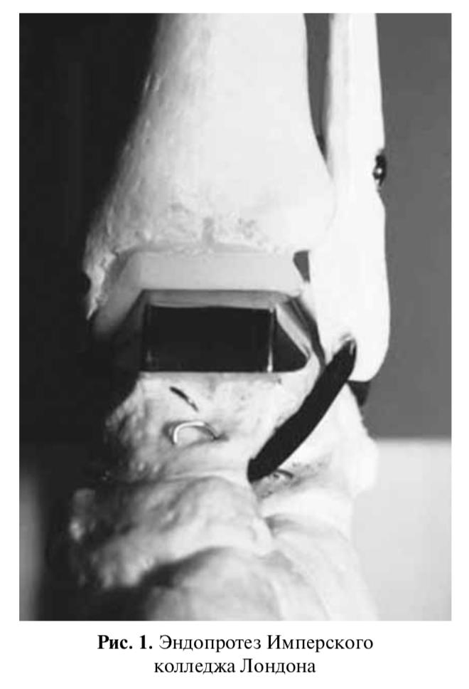 Эндопротезирование голеностопного сустава