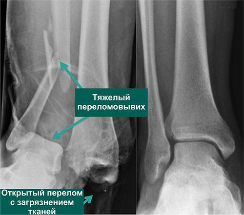 Реабилитация голеностопного сустава после травм, артродеза, эндопротезирования
