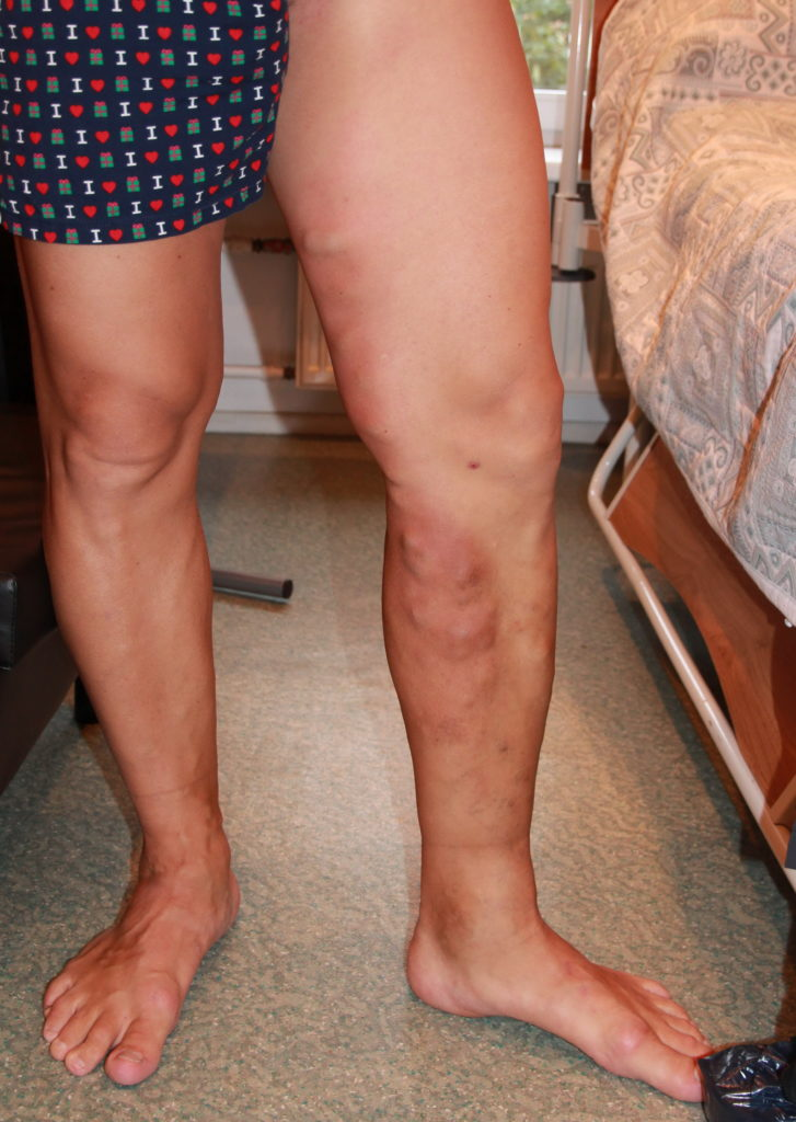 Эндопротезирование тазобедренного сустава тромбоз