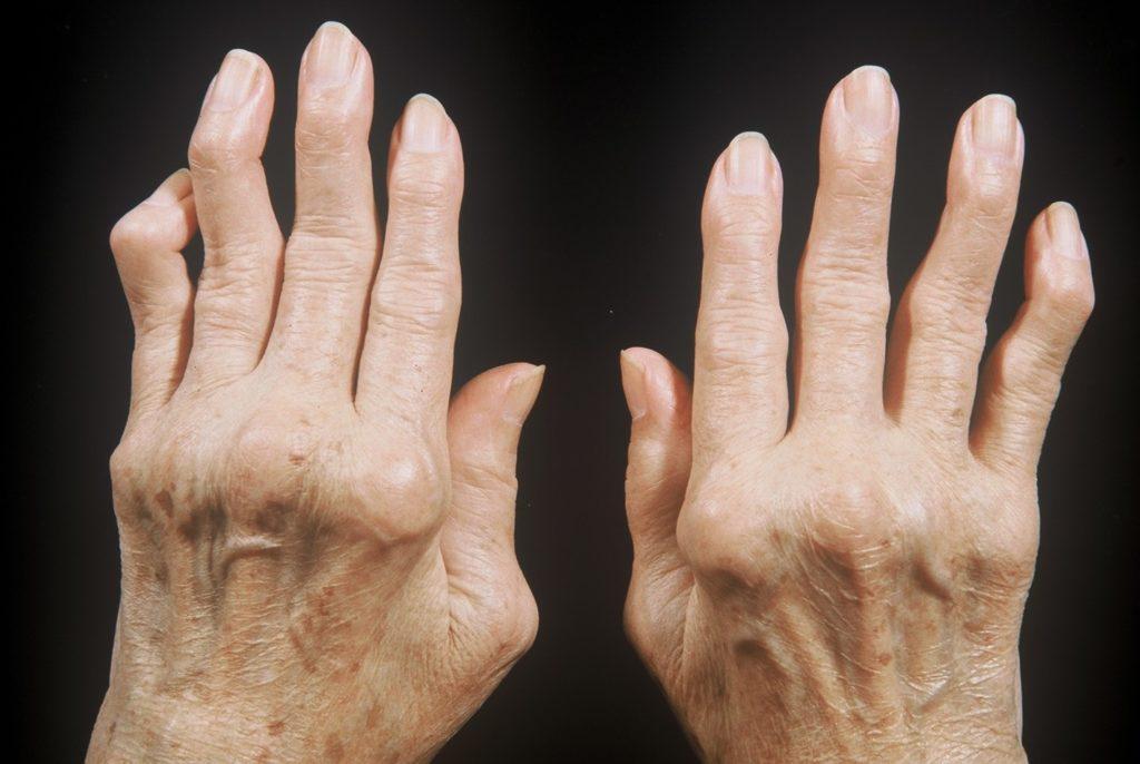 Эндопротезирование суставов при ревматоидном артрите: особенности