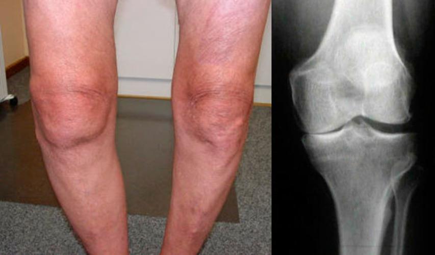 Артрит колена внешние проявления.