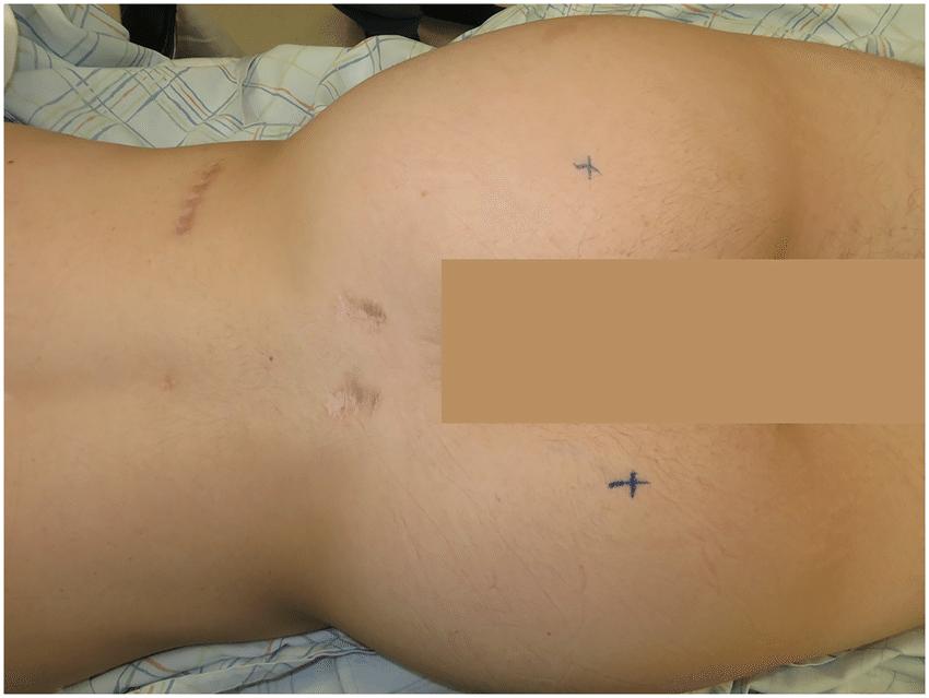 Шрамы после операции на спине