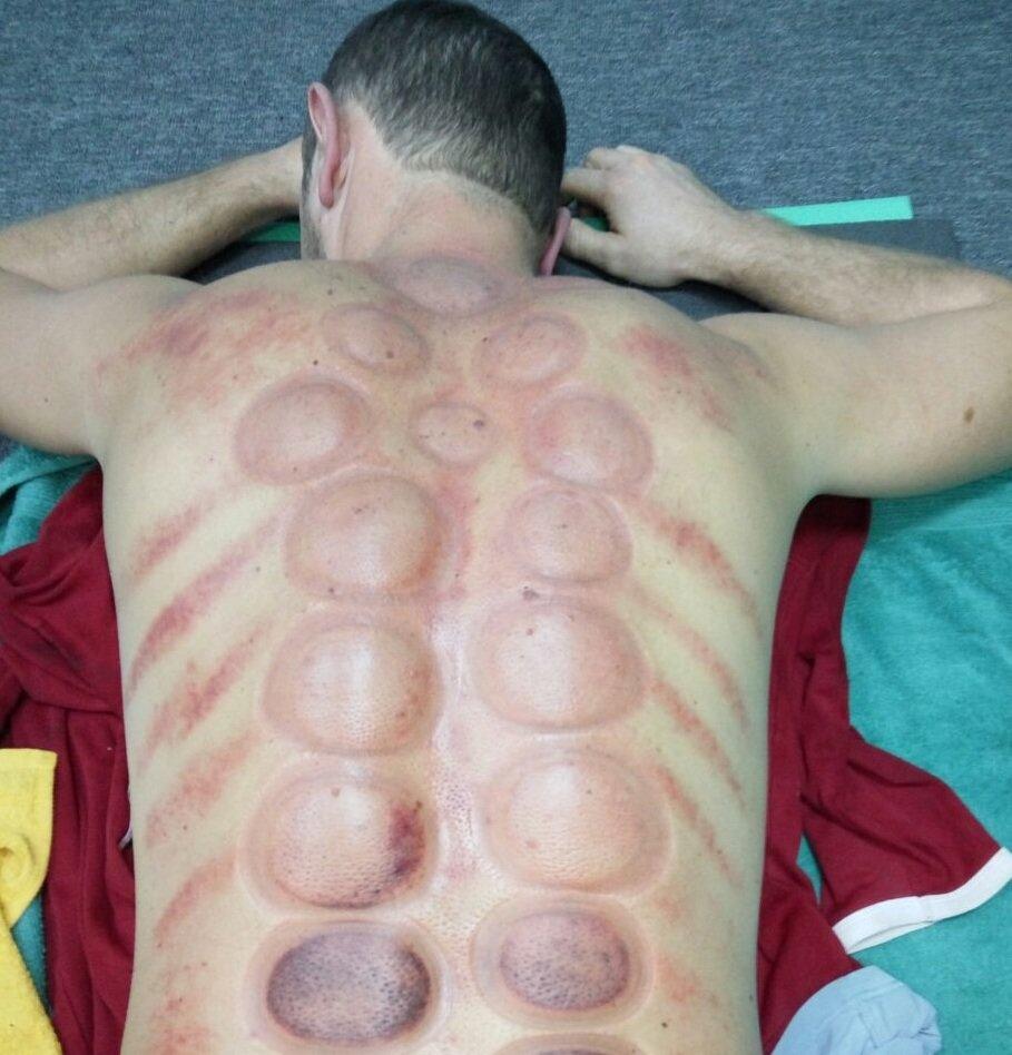 Спина после массажа