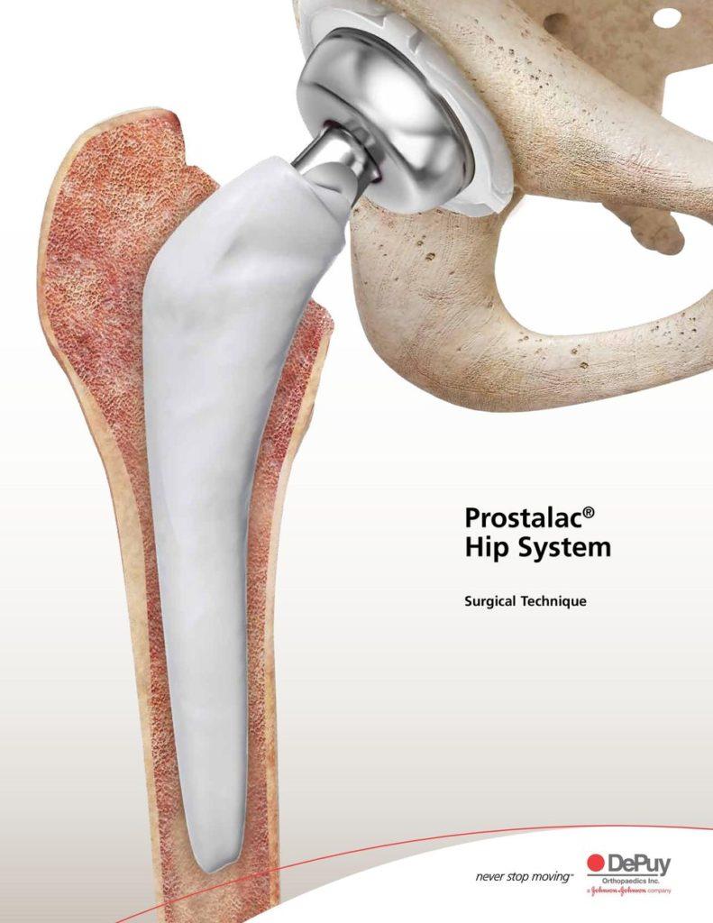 Prostalac® Hip System (DePuy)