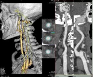 Топография позвоночных артерий