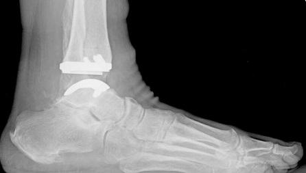 Эндопротез голеностопа на рентгене.