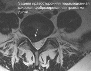 Грыжа поясничного отдела позвоночника лечение в красноярске thumbnail