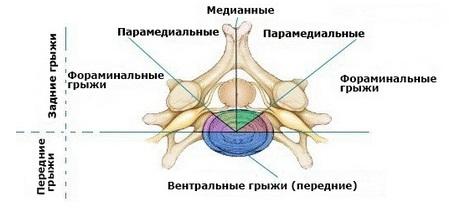 Секвестрированная грыжа поясничного, шейного и грудного отдела позвоночника: лечение