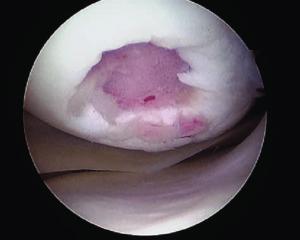 Локальное травматическое повреждение коленного сустава, вид через артроскоп.